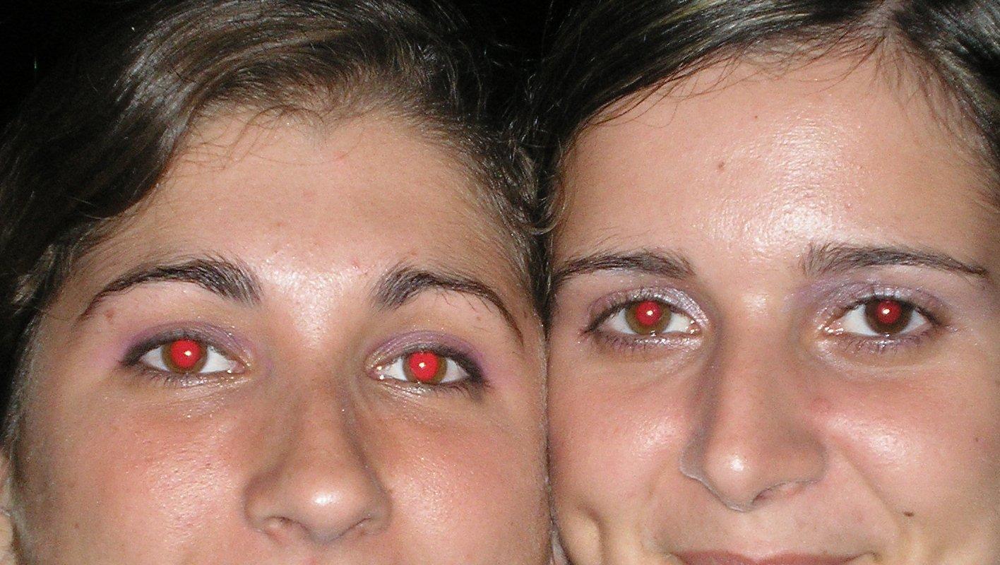foto de dos personas con ojos rojos